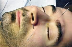 Sinus acupuncture